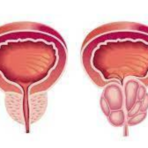 Dietmed Academy - Webinar Hiperplasia benigna da próstata